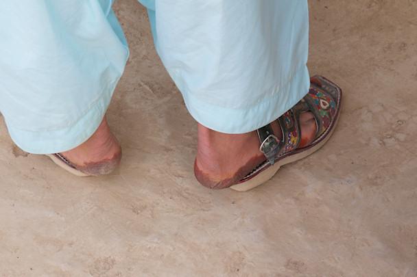 Liian pienet sandaalit sotilaalla   © Michael Yon   Kulkuri.org